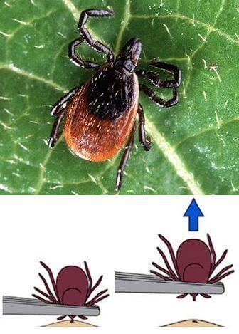 Picture of an adult Deer Tick with tick removal instructions using tweezers.