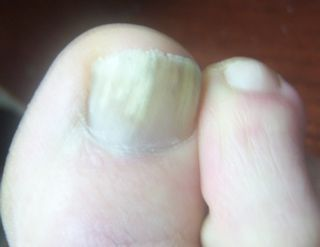 Toenail Fungus On Right Foot Big Toe