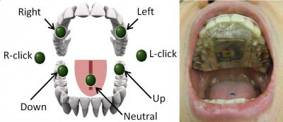 The circuitry for the new intraoral Tongue Drive System developed at Georgia Tech is embedded in this dental retainer worn in the mouth (right). The system interprets commands from seven different tongue movements to operate a computer (left) or maneuver an electrically powered wheelchair