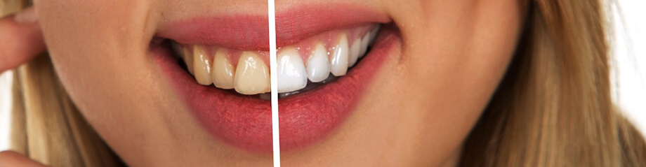 Closeup image of a female mouth showing a split view comparison of teeth before (left side) and after (right side) tooth whitening process.