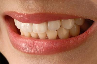 A nice smile showing white veneer teeth used in cosmetic dentistry.