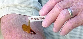 WoundSeal powder being applied to forearm